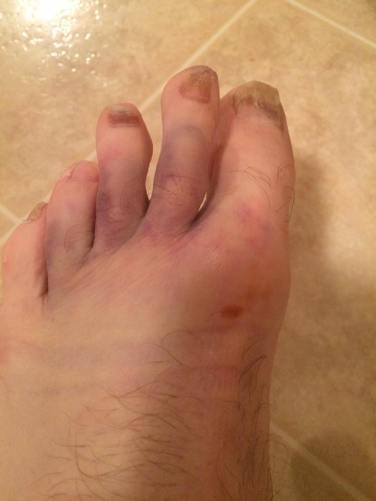 I know . . yucky toenails