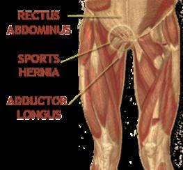 Sports-Hernia-Anatomy