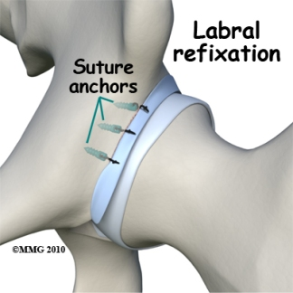 hip_labral_tear_refixation