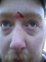 scope_scar