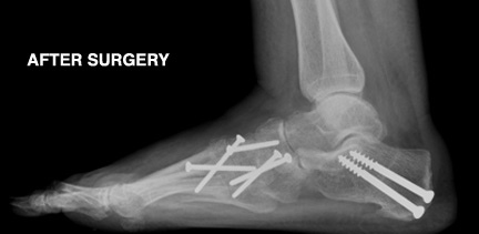 post_surgery_screws
